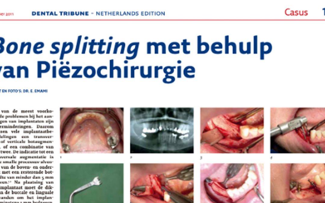 Bone splitting met behulp van Piëzochirurgie