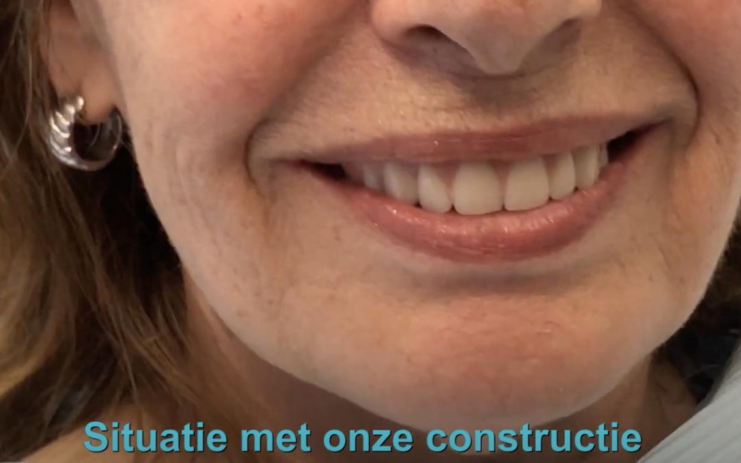 Verschil tussen gewone prothese en onze prothese constructie